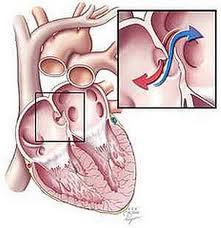 Obat Katup Jantung Bermasalah